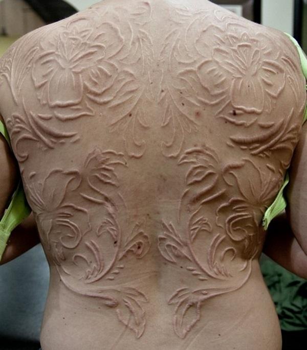 Full Back Scarification for Women