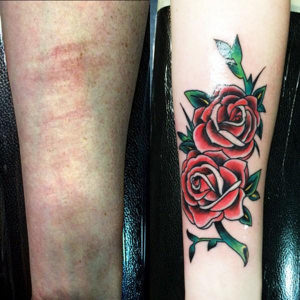 Birthmark Cover Up Tattoo
