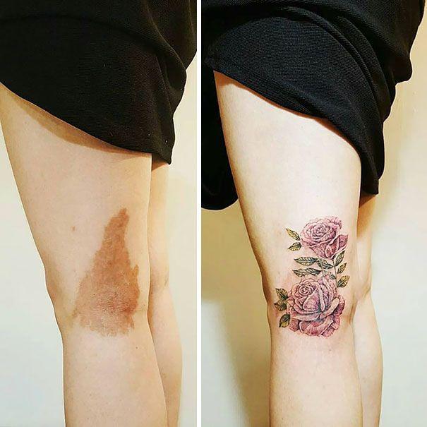 birthmarks tattoo on leg